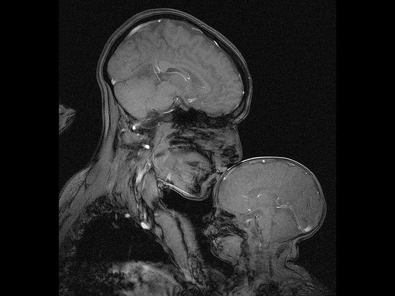 Oryginalne zdjęcie rezonansu magnetycznego
