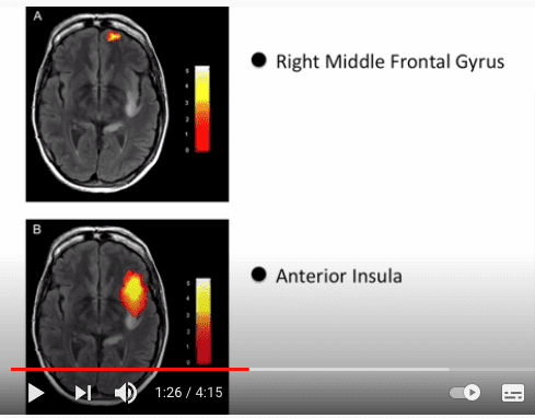 Zdjęcia rentgenowskie mózgu człowieka